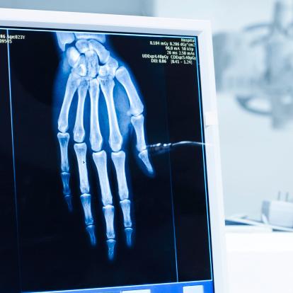 Hand「Analyzing x-ray or scann radiography in hospital」:スマホ壁紙(18)