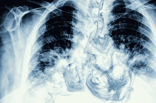 Heart「Smoke visible on chest X-ray image」:スマホ壁紙(17)