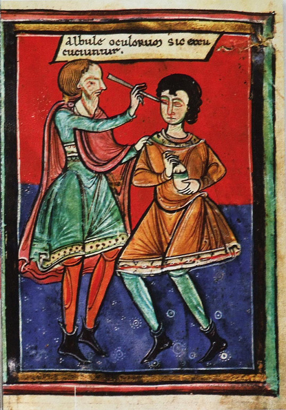 Optical Instrument「Ophthalmology in the Medieval Period」:写真・画像(4)[壁紙.com]
