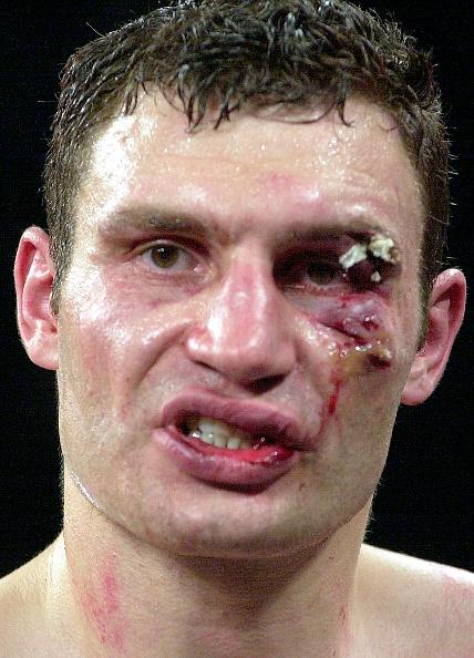 WBC「Klitschko After Lewis Fight」:写真・画像(11)[壁紙.com]