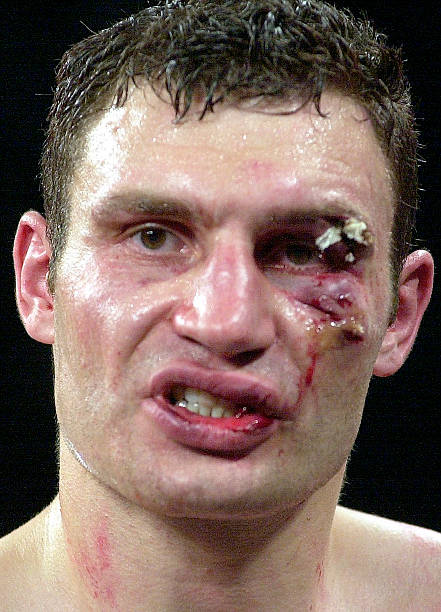 Klitschko After Lewis Fight:ニュース(壁紙.com)