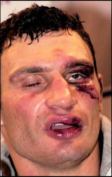 Klitschko After Lewis Fight:ニュース(壁紙.com)