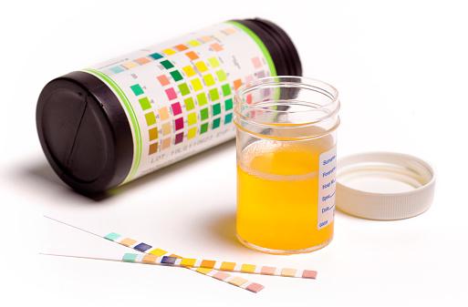 Removing「Taking urine sample」:スマホ壁紙(17)