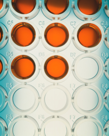 Specimen Holder「Orange liquid in wells of microtiter plate, close-up, elevated view」:スマホ壁紙(19)