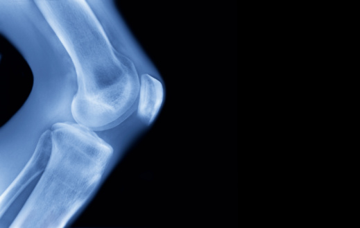 Biology「X-ray of human knee,」:スマホ壁紙(1)