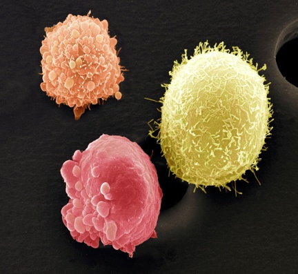 Oncology「Skin cancer cells, colored scanning electron micrograph (SEM)」:スマホ壁紙(17)