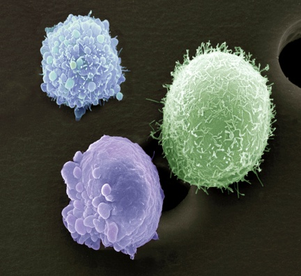 Oncology「Skin cancer cells, scanning electron microscope (SEM)」:スマホ壁紙(10)