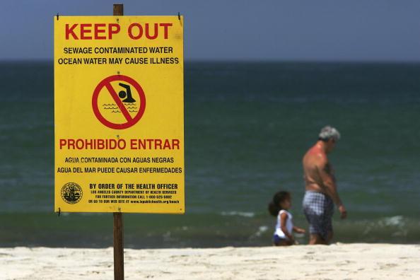 David McNew「Sewage Spill Closes Los Angeles Area Beach」:写真・画像(7)[壁紙.com]