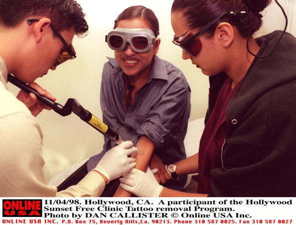 Dan Callister「11/04/98. Hollywood, Ca. A participant of the Hollywood Sunset Free Clinic Tattoo removal Program」:写真・画像(1)[壁紙.com]