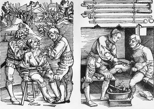 16th Century Style「Early Surgery」:写真・画像(6)[壁紙.com]