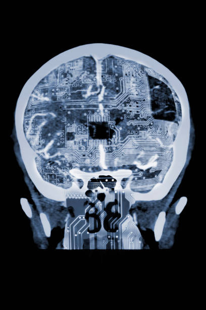 Circuit board in x-ray of skull:スマホ壁紙(壁紙.com)
