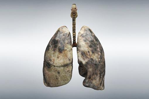 Tar「Smoker's lung」:スマホ壁紙(16)