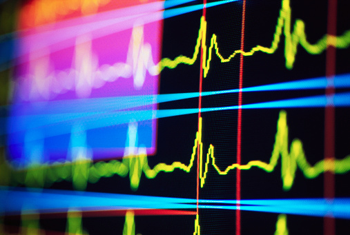 Vulnerability「Heart Rate Monitor」:スマホ壁紙(17)