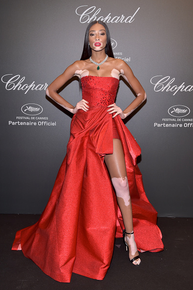 ウィニー・ハーロウ「Chopard Space Party - Photocall - The 70th Cannes Film Festival」:写真・画像(9)[壁紙.com]