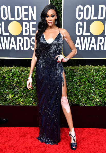 Winnie Harlow「77th Annual Golden Globe Awards - Arrivals」:写真・画像(5)[壁紙.com]