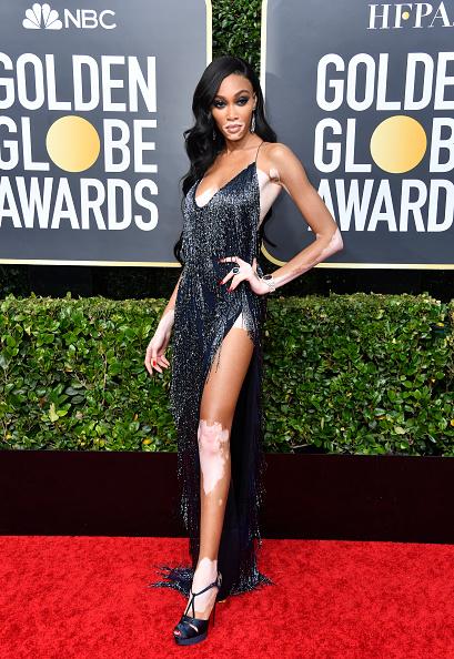 Winnie Harlow「77th Annual Golden Globe Awards - Arrivals」:写真・画像(7)[壁紙.com]