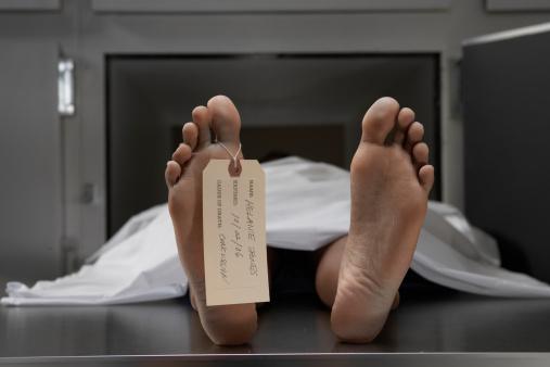 """雪「""""Cadaver on autopsy table, label tied to toe, close-up""""」:スマホ壁紙(4)"""