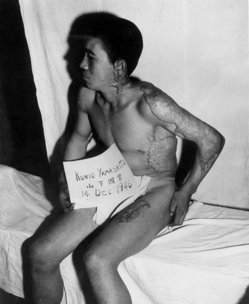 Surrendering「Nagasaki Victim」:写真・画像(1)[壁紙.com]