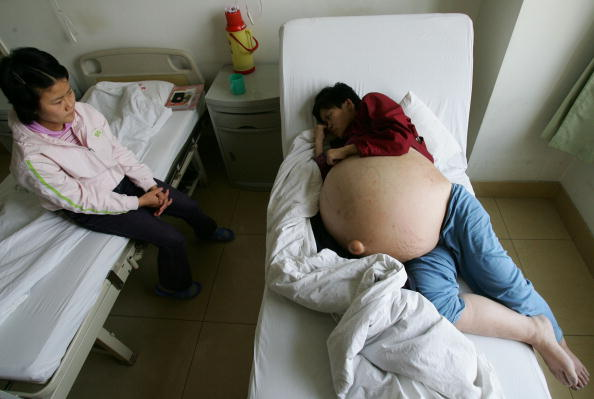 Lying Down「Chinese Woman Suffering From Huge Tumour Undergoes Treatment」:写真・画像(0)[壁紙.com]