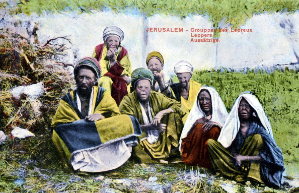 Photography「Leprosy in Jerusalem」:写真・画像(11)[壁紙.com]