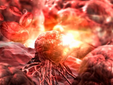 Cancer Cell「cancer cell」:スマホ壁紙(19)