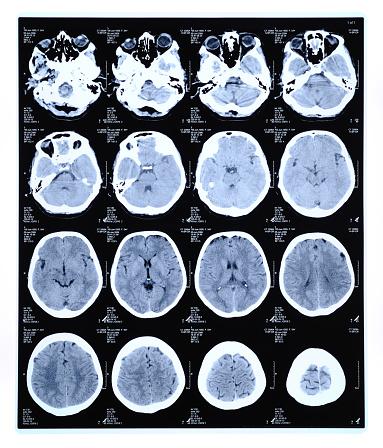 MRI Scan「CAT scan」:スマホ壁紙(16)