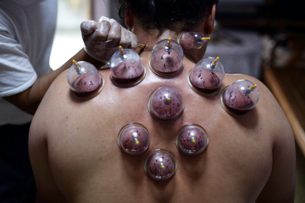 Asia Cup「Cupping Therapy Practised In Singapore」:写真・画像(4)[壁紙.com]