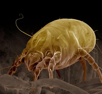 Asthmatic「Dust Mite, Dermatophagoides pteronyssinus」:スマホ壁紙(14)
