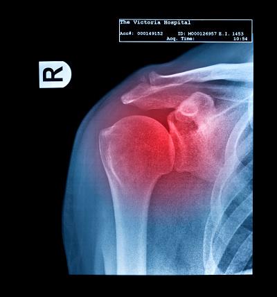 Shoulder「X-ray showing frozen shoulder」:スマホ壁紙(6)