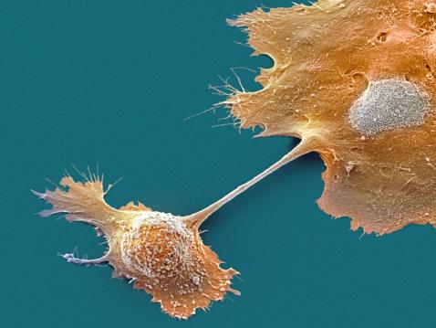 Oncology「Pancreatic cancer cells, SEM」:スマホ壁紙(15)