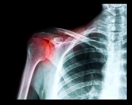 Shoulder「X ray of a shoulder in pain」:スマホ壁紙(9)