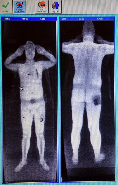 X-ray Image「Full Body Scanners Unveiled At Manchester Airport」:写真・画像(14)[壁紙.com]