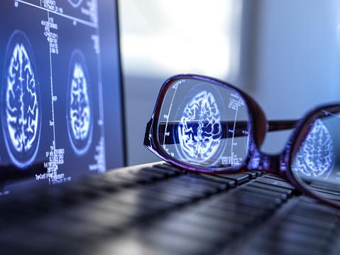 Neuroscience「Brain scan results reflecting in protective glasses lying on laptop keyboard」:スマホ壁紙(3)