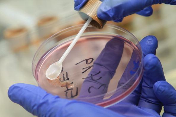 Stool「Health Authorities Seek Clues To EHEC Outbreak」:写真・画像(3)[壁紙.com]