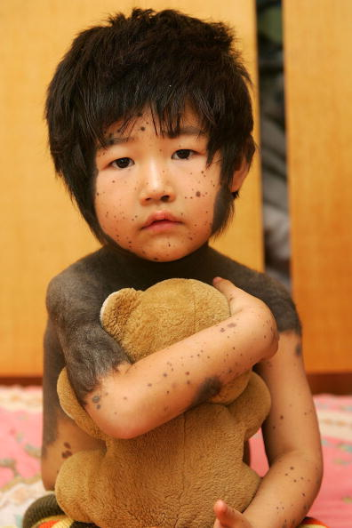 Elementary Age「Chinese Girl With Hairy Black Moles Waits For Treatment」:写真・画像(18)[壁紙.com]