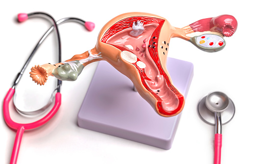 Guidance「Uterus and Ovary anatomical model showing common pathologies」:スマホ壁紙(5)