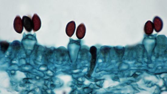 Fungus Gill「Bassidia & basidiospores. Inky Cap Mushroom (Coprinus), 250X at 35mm. Shows: basidia, basidiospores, sterigma and portion of gill. Kingdom Fungi, Phylum Basidiomycota (basidiomycetes or club fungi).」:スマホ壁紙(15)