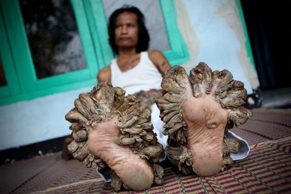 "Bizarre「Indonesian ""Tree Man"" Continues Treatment For Human Papilloma Virus」:写真・画像(7)[壁紙.com]"