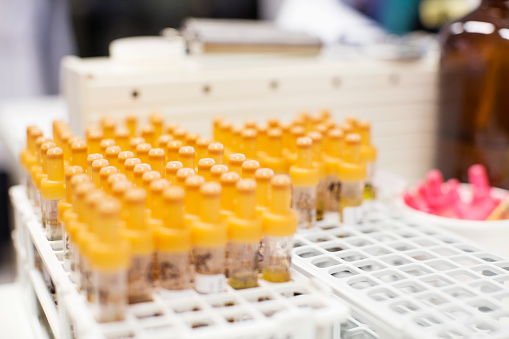 Chemical「Close-up of medical samples in test tubes」:スマホ壁紙(1)