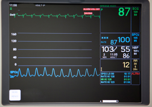 Monitoring Equipment「Close-up of intensive care unit monitoring screen」:スマホ壁紙(2)