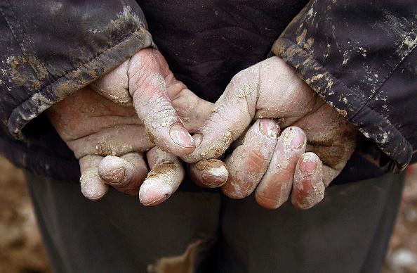 Human Hand「Hundreds Are Killed After An Earthquake Hits Zarand Region」:写真・画像(13)[壁紙.com]