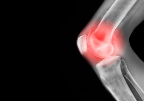 Insurance「X ray of knee leg in pain」:スマホ壁紙(6)
