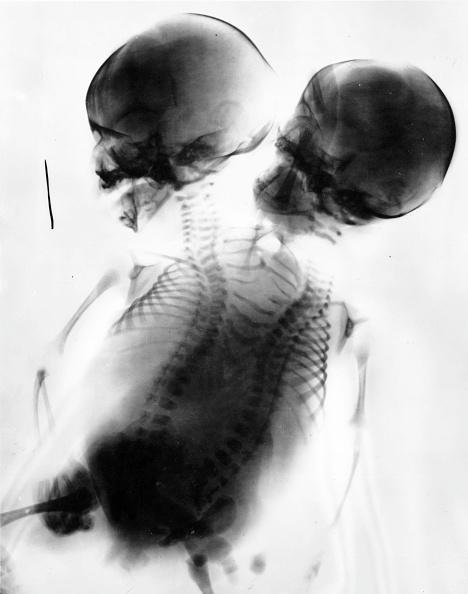 Twin「Siamese Twins」:写真・画像(17)[壁紙.com]