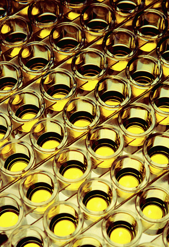 Specimen Holder「Urine Samples in Beakers」:スマホ壁紙(0)