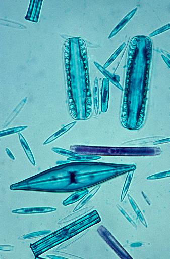 Algae「A Variety of Diatoms--a major component of Plankton, 100X」:スマホ壁紙(5)