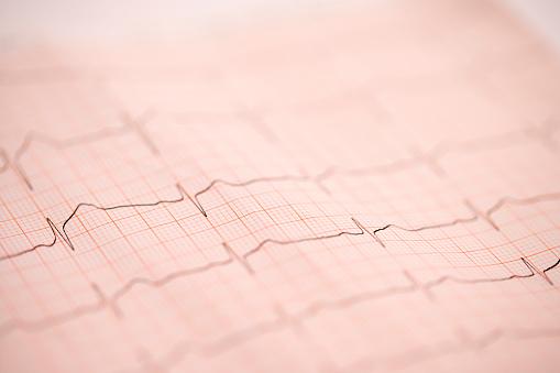 Heart「EKG」:スマホ壁紙(3)