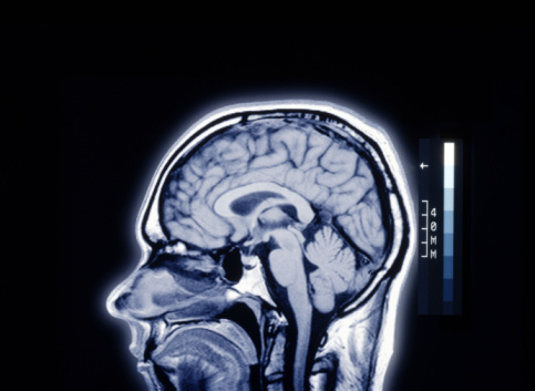 Tomography「MRI IMAGE OF MALE HEAD」:スマホ壁紙(13)