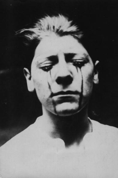 Teardrop「Tears of Blood」:写真・画像(16)[壁紙.com]