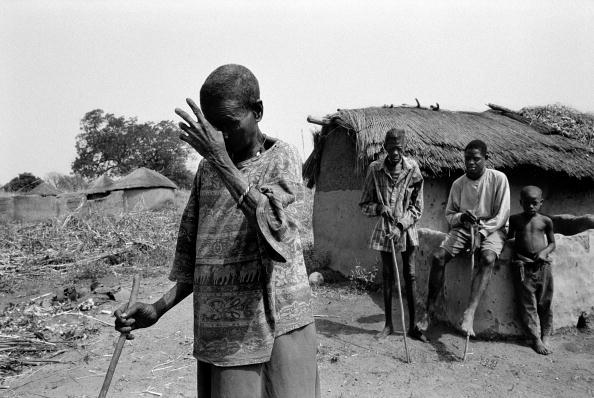 Tom Stoddart Archive「River Blindness」:写真・画像(5)[壁紙.com]
