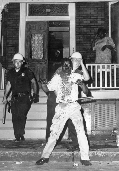 Surrendering「Injured Rioter」:写真・画像(1)[壁紙.com]